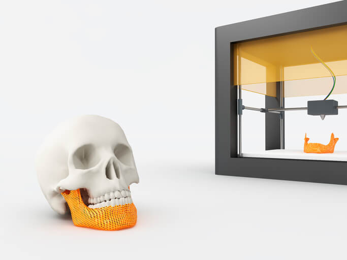 4D printing in healthcare