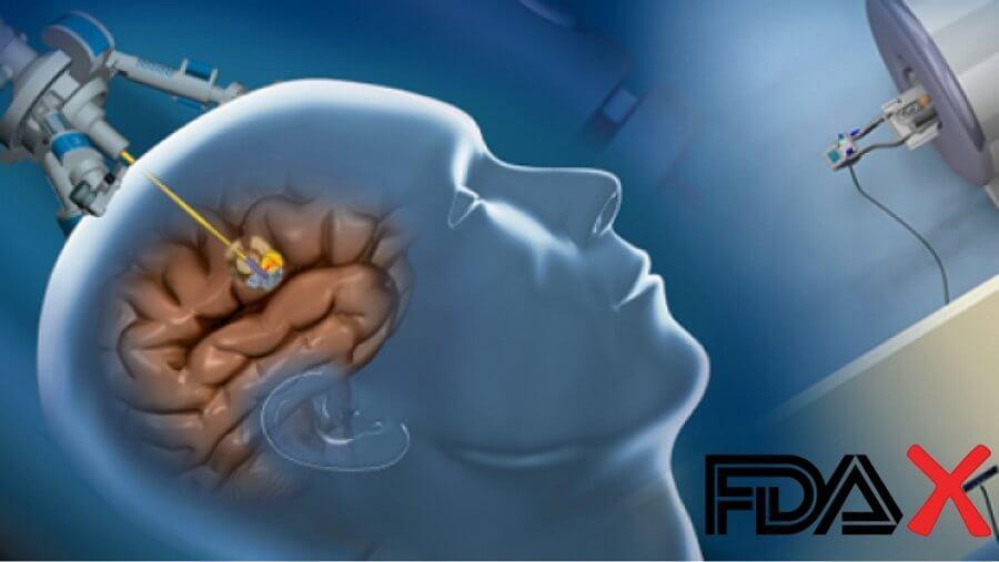 brain surgery medical device
