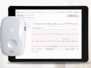 Arrhythmia detection platform​