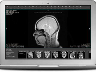 Medical image management